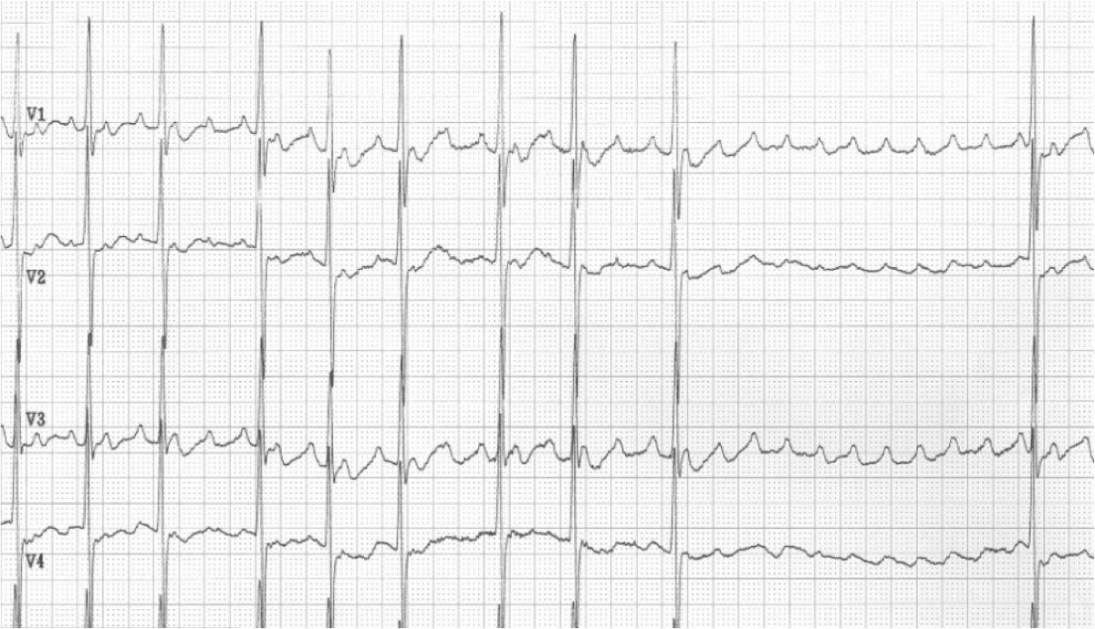 Atrial flutter, administration of adenosine (see other pics too)