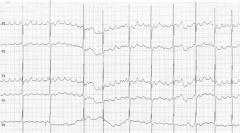 Ongoing atrial flutter before adenosine (see other pics too)