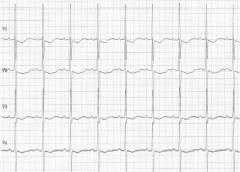 ECG: Sinus rythm, after adenosin treatment of atrial flutter (see other pics too)