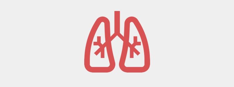 Congenital Pneumonia, please share your experience